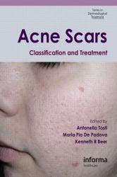 Acne Scars: Classification and Treatment Excellent Marketplace listings for  Acne Scars: Classification and Treatment  by Antonella Tosti starting as low as $159.34!